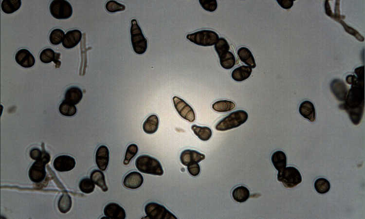 Alternaria alternata under microscope